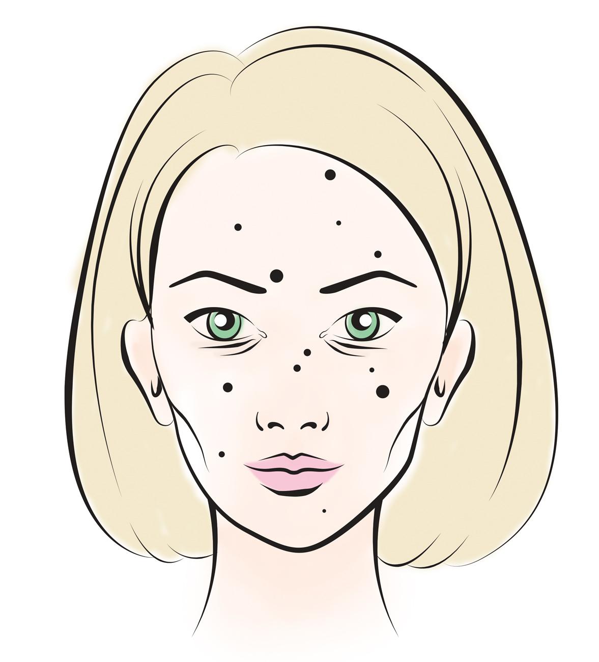 bőrproblémák, Bőrre írt étkezési szokások – Küszöböld ki a bőrproblémákat helyes táplálkozással még az esküvő előtt!